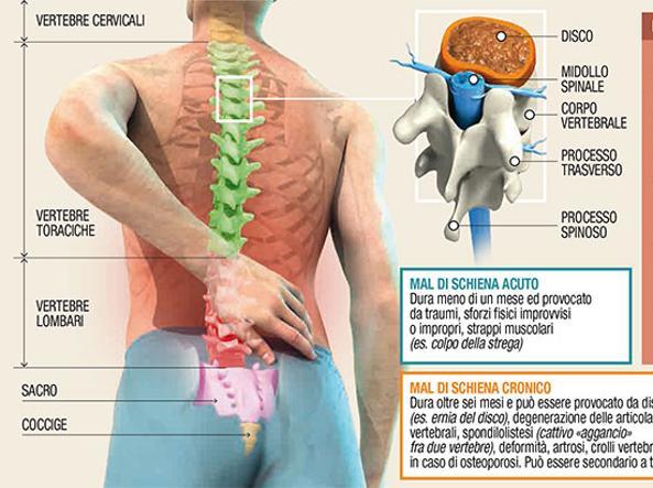 Bendaggio per reparto cervicale di una spina dorsale a ernia